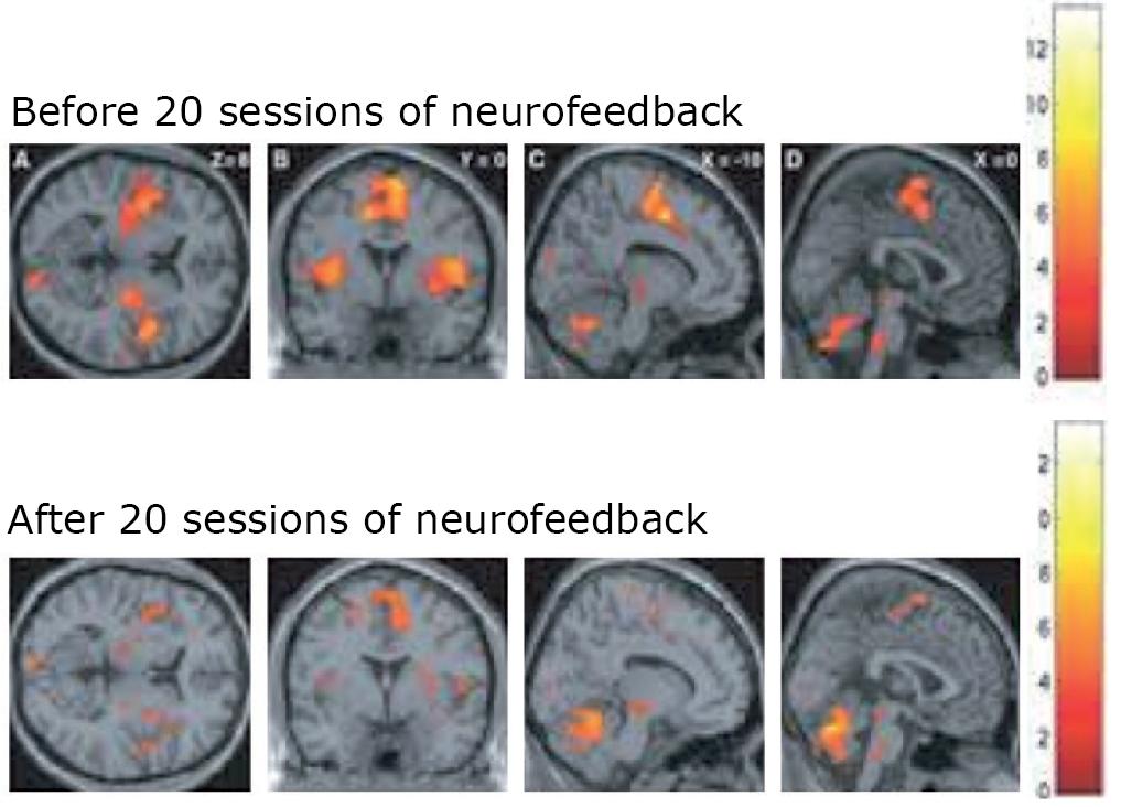 Neuroperforma